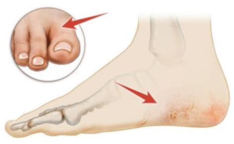 dry cracked feet treatment   home remedies