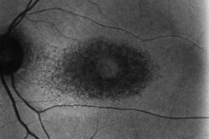 Plaquenil Toxicity - Bull's Eye Maculopathy - 25 Years ...