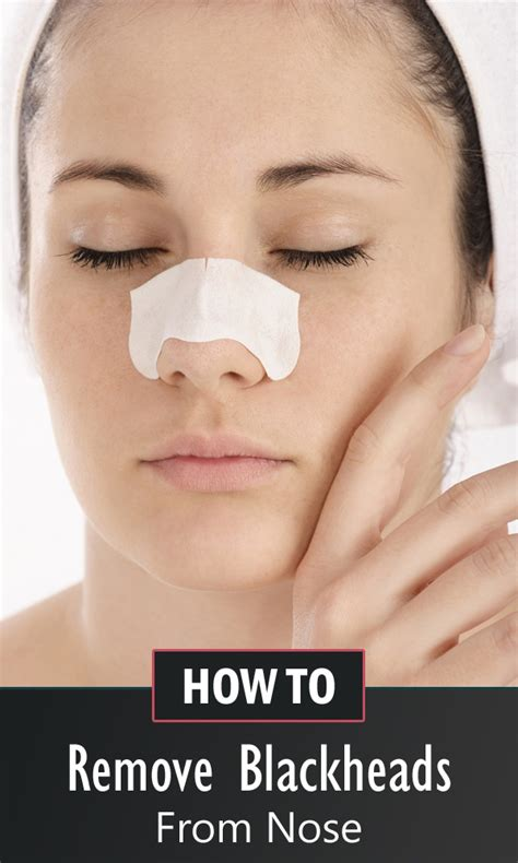 how to remove blackheads from nose permanently