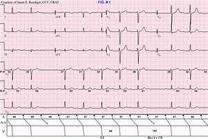 Lvh With Normal Axis