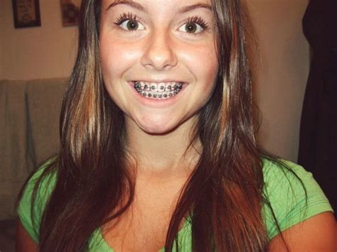 black color braces 13 best images about on different types