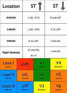 Myocardial Infarction Cheat Sheet