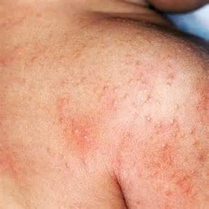 Allergy Skin Rashes Treatment