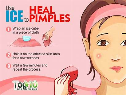 Pimples Rid Remove Fast Ice Remedy Pimple