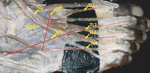 Dissection Of The Dorsum Of The Right Foot Showing The