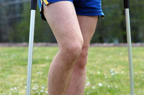 baenderzerrung knie symptome therapie folgen alle