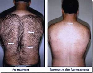 laser hair removal permanent hair removal