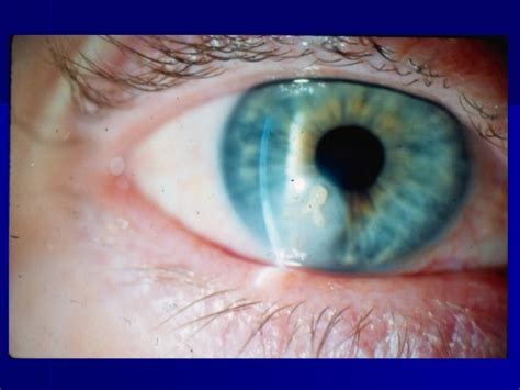 Herpes In The Eye Images Signs And Symptoms Of Herpes Stop Herpes Outbreaks