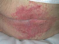 mycose siege dermites du siège groupe plaies et cicatrisation à