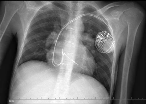 pacemaker chambre downportal
