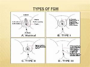 PPT - Female Genital Mutilation (FGM)/circumcision ...