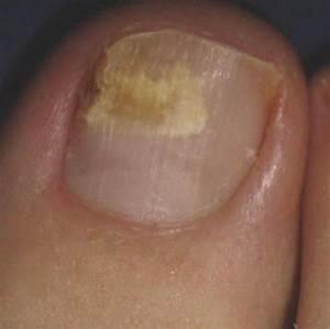 Как избавиться грибок ногтей на ногах