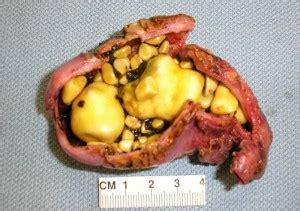 gallstone pancreatitis beating pancreatitis