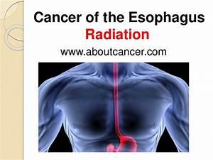 Esophagus Cancer Radiation Treatment