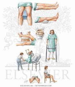Rehabilitation After Total Hip Replacement