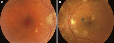punctate  choroidopathy clinical features  outcomes ophthalmology jama