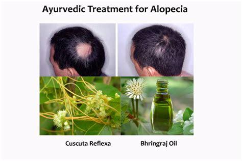 cure alopecia  alopecia treatment  men