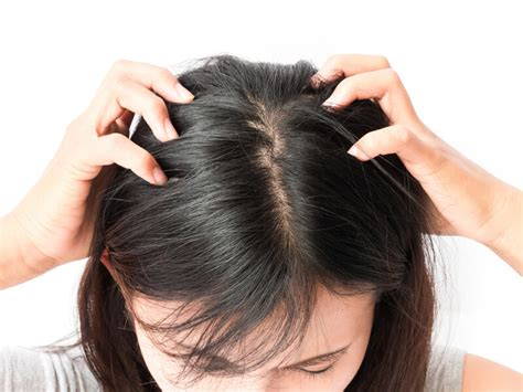 dandruff    flaky itchy scalp    treat