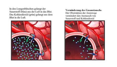 lungenembolie symptome und ursachen anzeichen