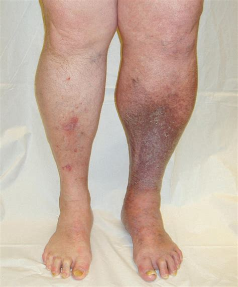 Medical Pictures Info  Blood Clots in Leg