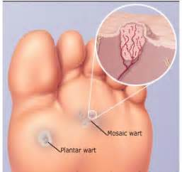 what is a planters wart the about plantar warts pa foot and ankle associates