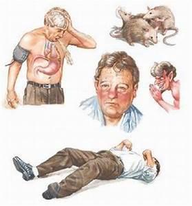 Alcohol Withdrawal Symptoms | Alcohol Rehab | Alcohol Detox