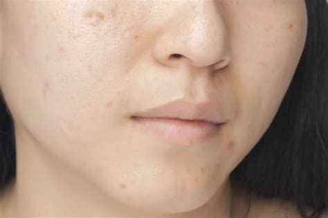 Whitening Mask For Acne Scars Mario Badescu Skin Care Blog