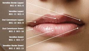 Lip Cancer: Not Uncommon, Often Overlooked - SkinCancer.org