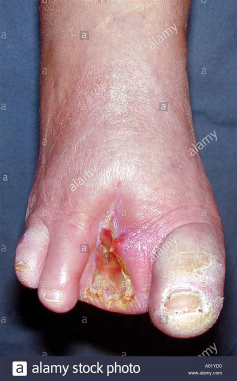 diabetic foot infection stockfotos diabetic foot
