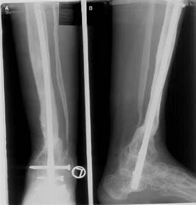 Retrograde Intramedullary Nailing For Recurrent Fracture