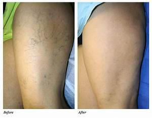 Spider Veins Removal Encino by MedNet Aesthetics. Call ...