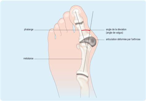 Les symptômes de la mycose des ongles pour analyser ses pieds