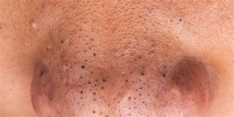 how to get rid of blackheads on your nose s health