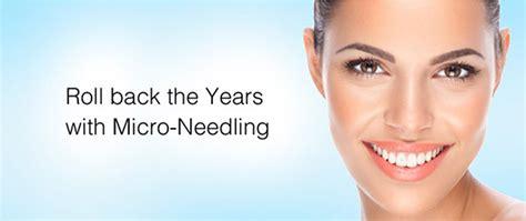 offering microneedling seasons salon day spa
