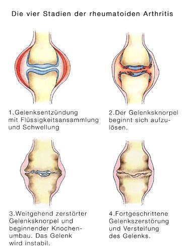 arthritis rheumatoide arthritis polyarthritis