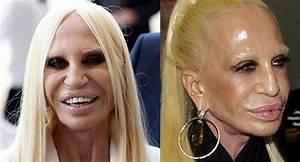 251 Fantastiche Immagini Su Celebrity Plastic Surgery Su