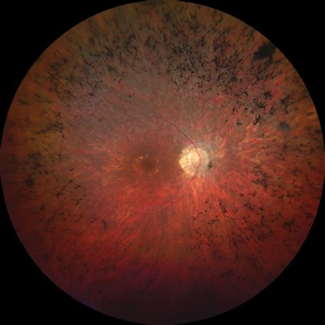 widefield fundus photography     screening test