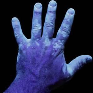 Woods Uv Lamp by Preguntas Frecuentes Sobre El Vitiligo Red Vitiligo