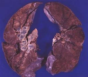 Gross Photographs  Images  Of Sarcoidosis