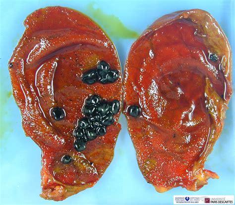 cholelithiasis humpathcom human pathology