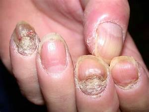 Psoriasis - Symptoms and causes - Mayo Clinic