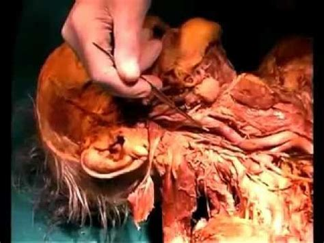 anatomical dissection  deep neck youtube