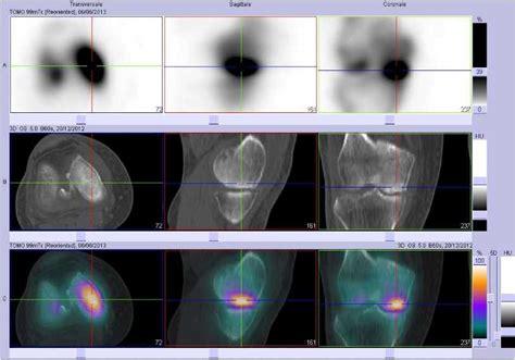 fracture du cadre obturateur fracture du cadre obturateur droit 28 images 04 fractures du cotyle 1 traumatismes pelviens