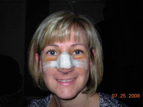Nose Job Recovery  Best Rhinoplasty. Divorce Financial Checklist Sce Electric Car. Waste Handling Equipment News. Graphic Designers San Diego Anti Porn Filter. Baylor College Of Medicine The Web Developer. Coffee With Cream Calories Waldorf Pet Clinic. Online University Scholarships. Understand In Different Languages. Website Pci Compliance 2012 Honda Rancher 420