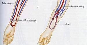 Comparison Of Dialysis Accesses  Av Fistula Vs  Av Graft