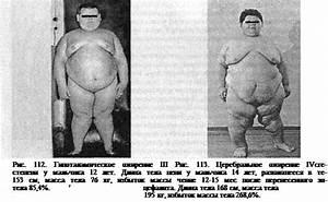 Лекарство безвредное для похудения