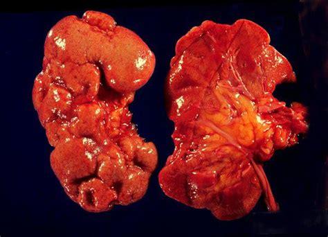 pyelonephritis causes symptoms treatment definition