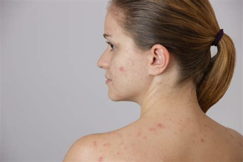 chicken pox what pregnant women need to know the pulse