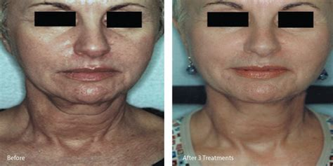 surgical skin tightening treatments