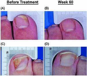 Toenail Onychomycosis  Illustrative Cases Of Durability Of